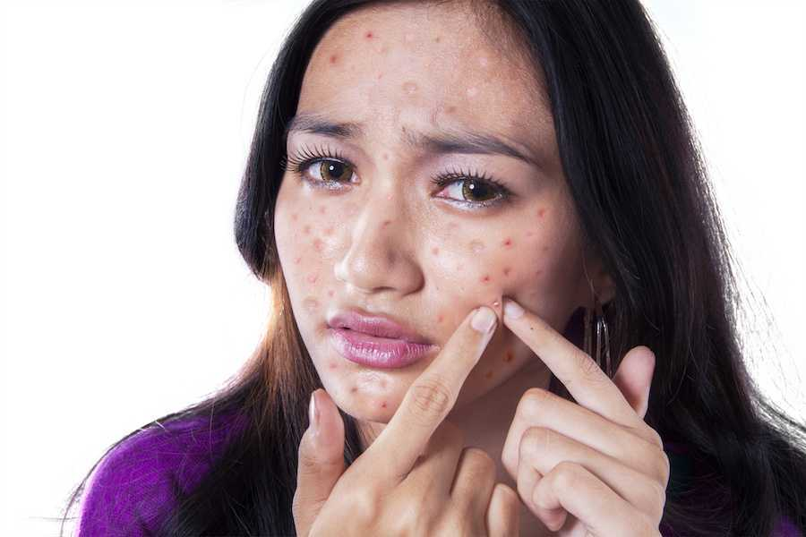 Why do people have Pimple problems in Thoubal?