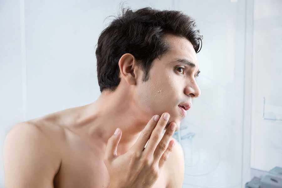 What's the deal with Kohima's Skin problems?