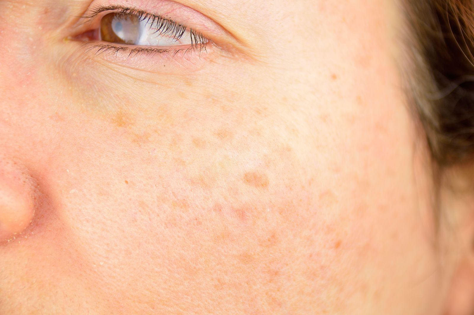 Image of a girl signifying Age spots