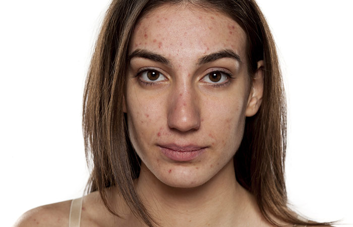 What happens when you don't get your Acne scars treated?