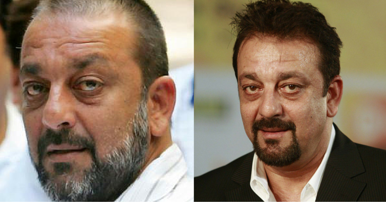 Hairfall transformation of Sanjay Dutt