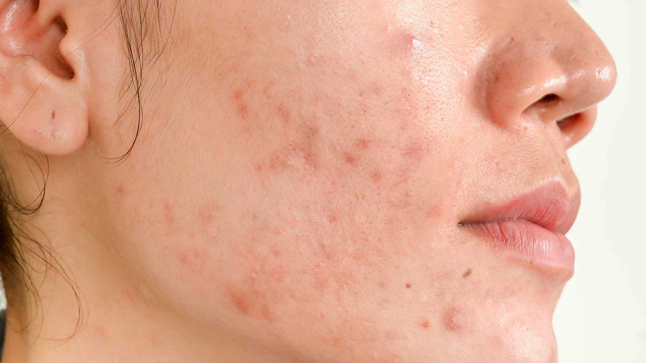 Image highlighting Acne Scars