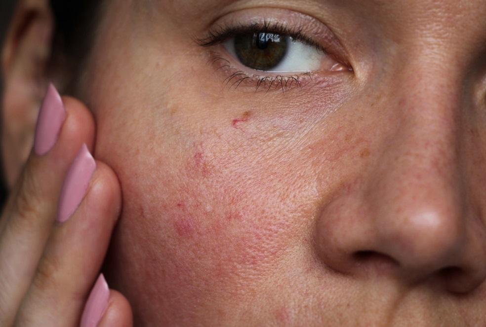Having Sensitive Skin? Say Goodbye to Allergies!