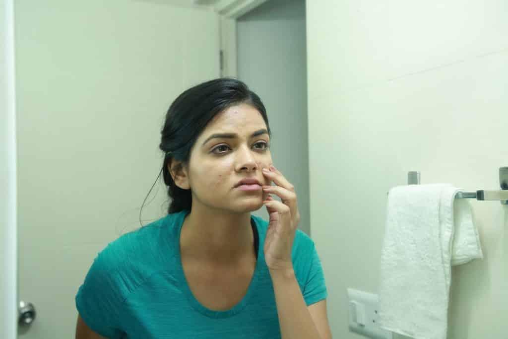 skin problems, acne, acne scars, cureskin app
