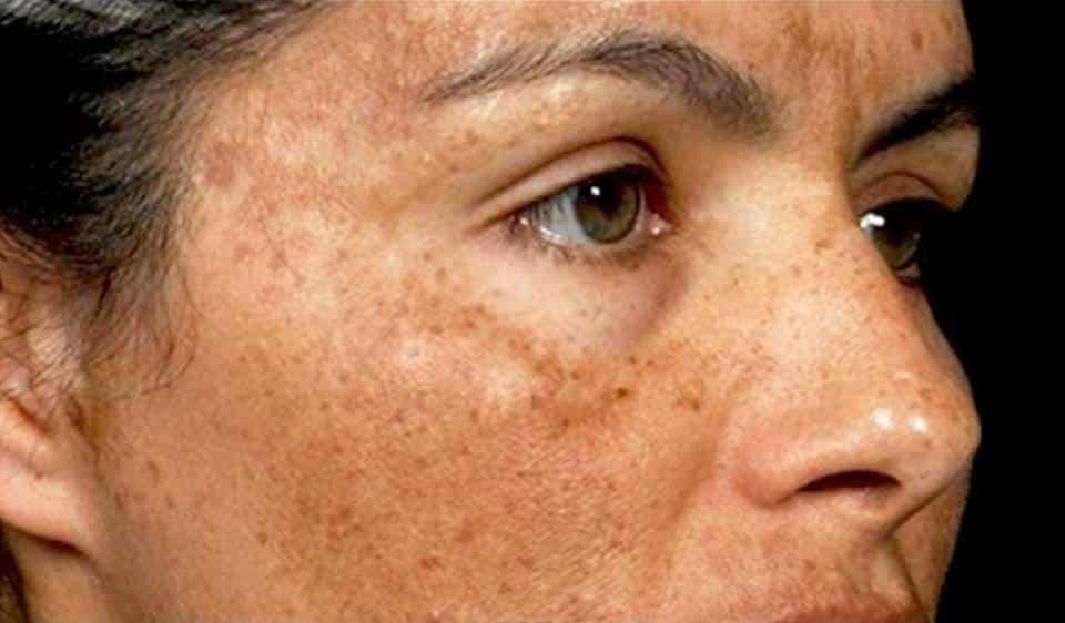 what casues hyperpigmentation