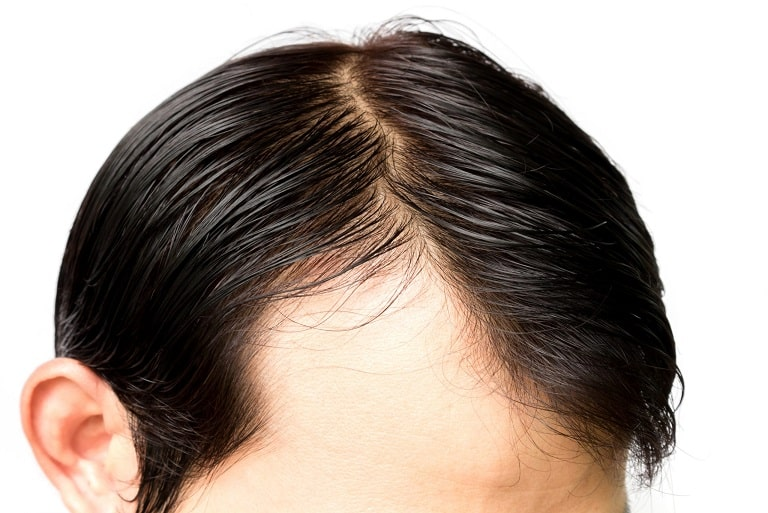 Receding Hairline in Men: Causes & Treatments