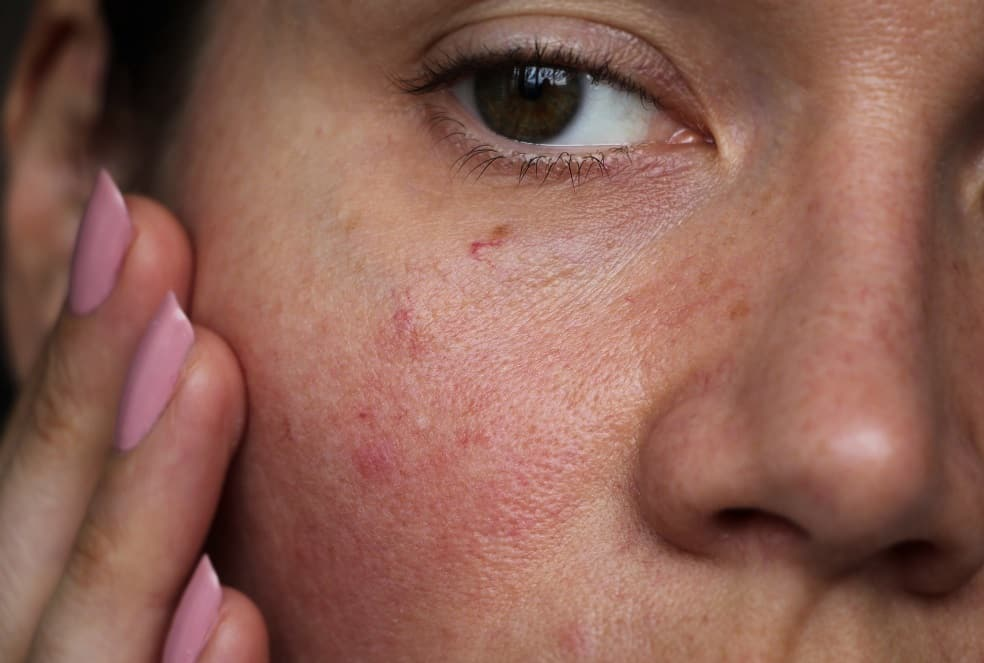 Having Sensitive Skin? Say Goodbye to Allergies!