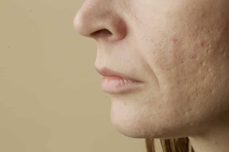 Pockmarks: What are these marks on face? Removal and Prevention