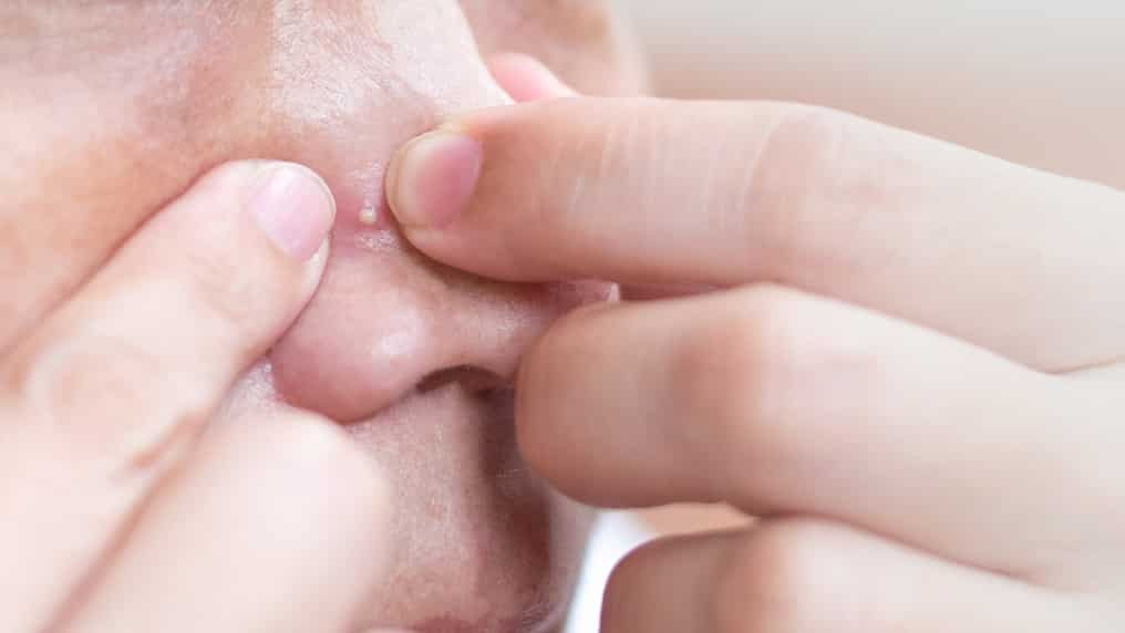 How To Prevent Pimples On Nose, According To Dermatologists!