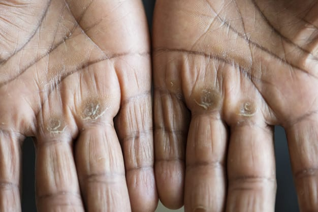 Hand Calluses: How to fix them?