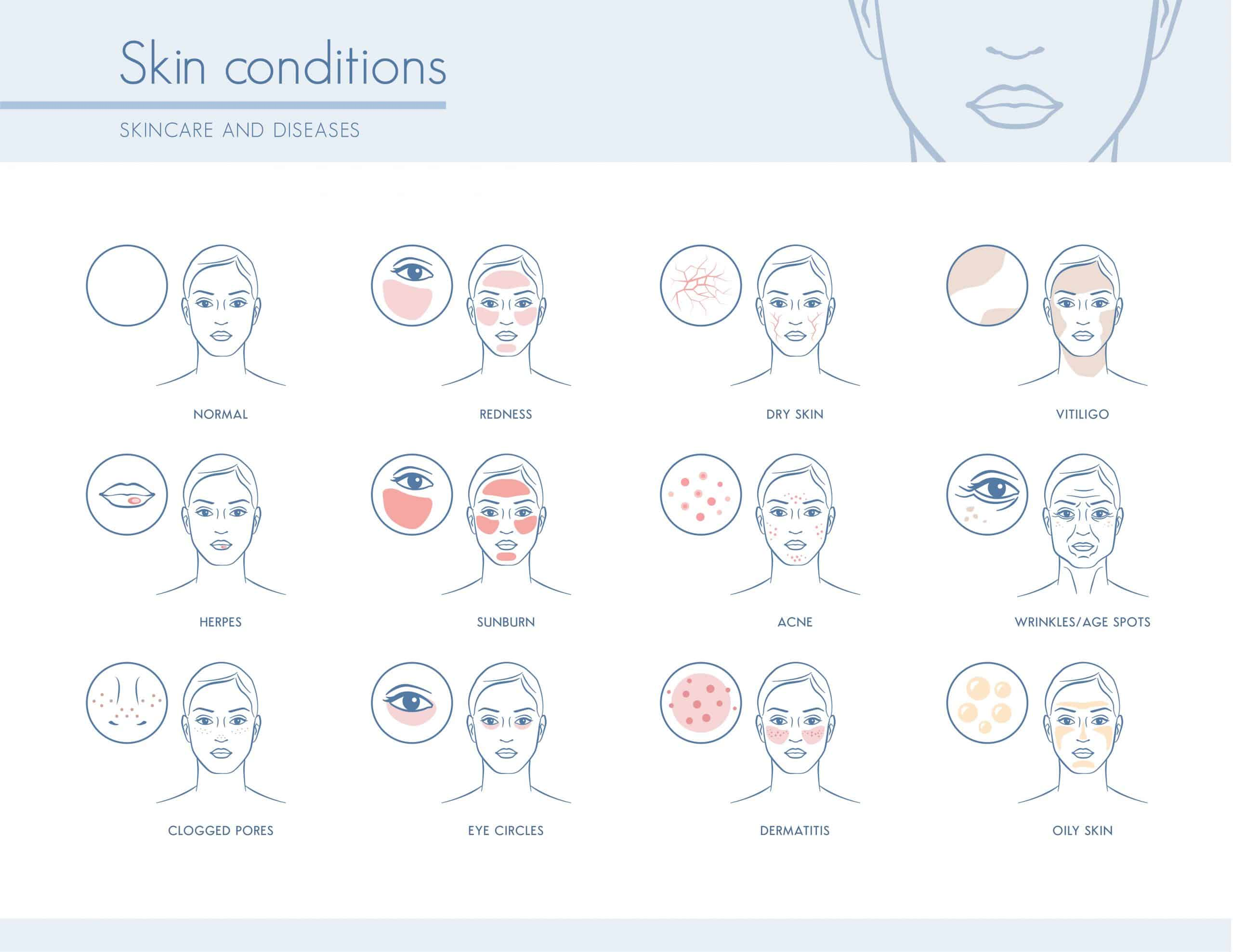 Hormones and Skin conditions: The complete guide