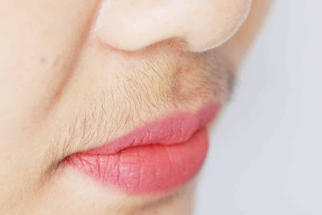 What Women With Excess Facial Hair Needs To Know