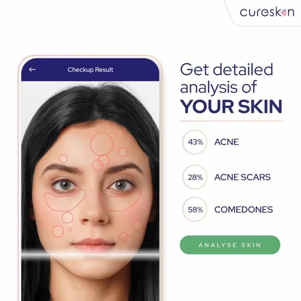 skin analysis report, skin test, skin diagnosis, cureskin app