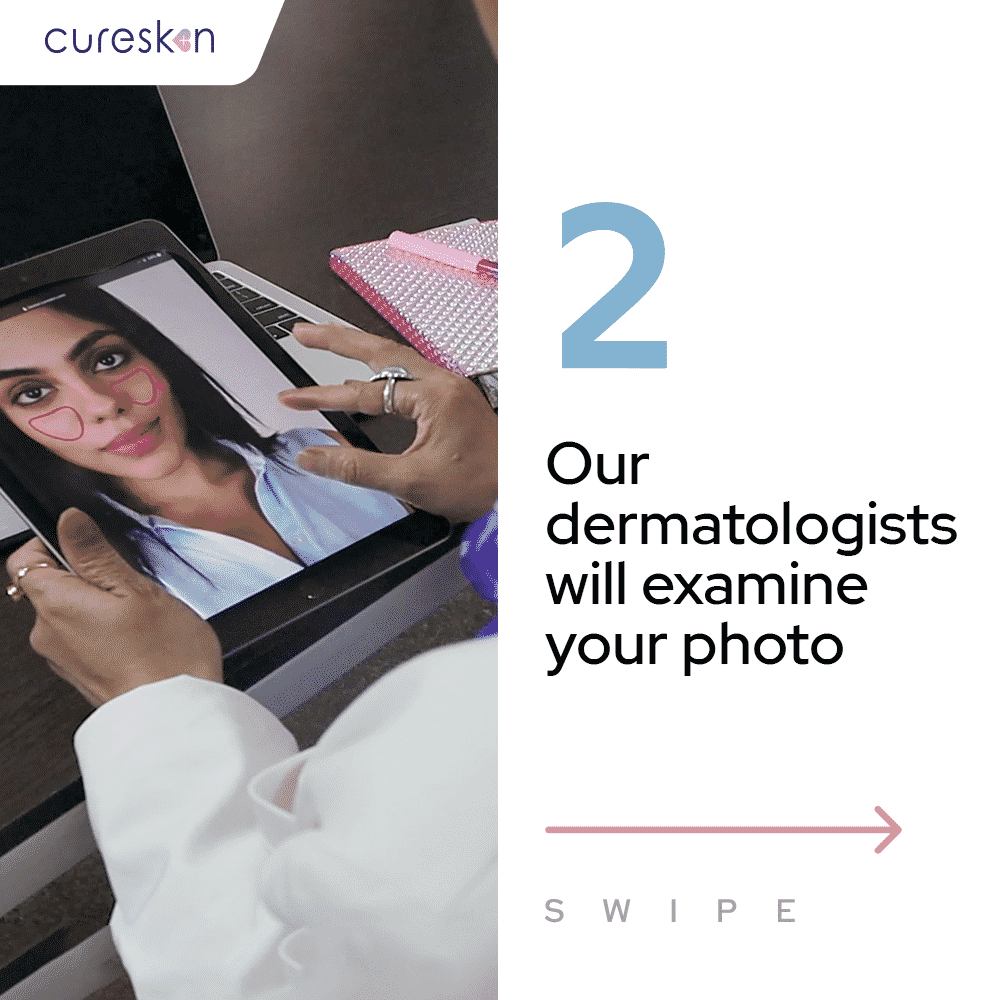 cureskin app steps, skin treatment process, Dermatologist