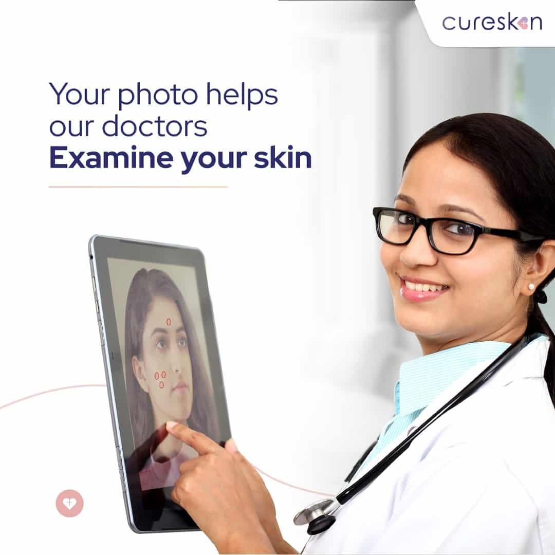 skin analysis report, skin test, skin diagnosis, cureskin app, dermatologist