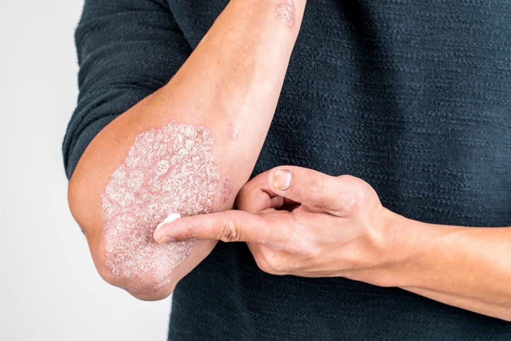 Skin Rash, Skin Rash Causes, Skin Rash Types, Skin Rash Reasons, Medicine for skin rash, Medicine for skin rash and itching, skin rash images, skin rash on face, skin rash remedies.